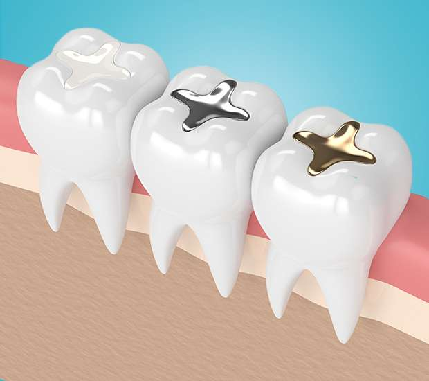 Albany Composite Fillings