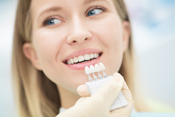 Things To Know Before Choosing Dental Veneers