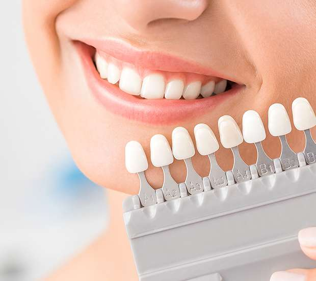 Albany Dental Veneers and Dental Laminates