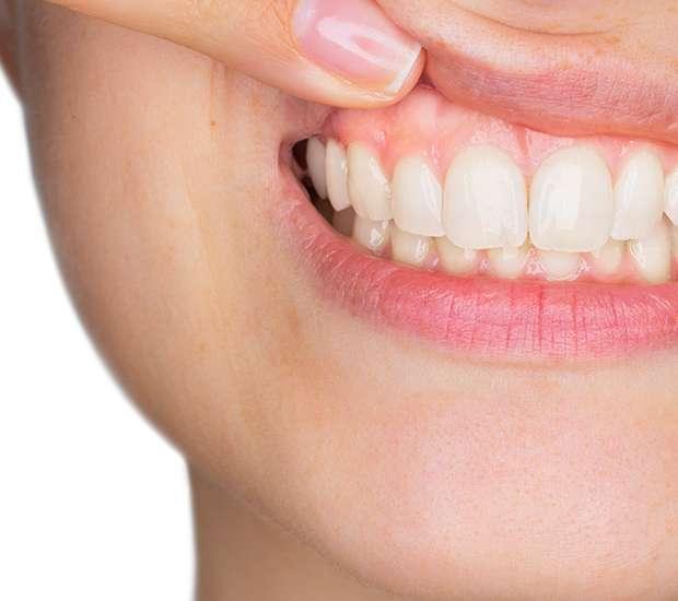 Albany Gum Disease