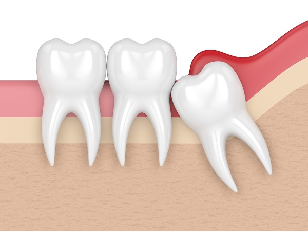 Reasons That Wisdom Tooth Extraction Is Needed